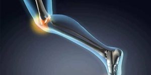 Nonpharmacologic, nonsurgical management of knee osteoarthritis